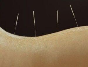 acupuntura dolor espalda