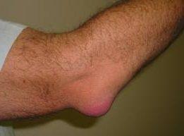 Bursitis de olecranon