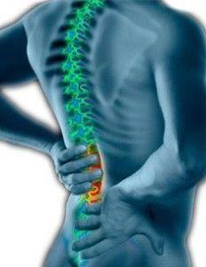 Desviación de espalda escoliosis