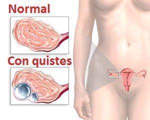 Ovarios normales y con quistes