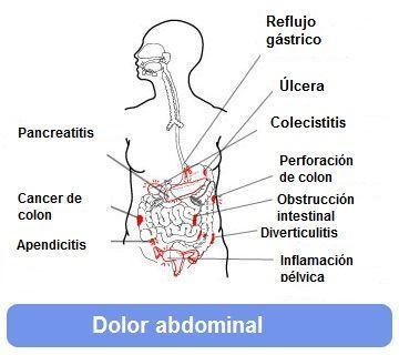 Dolor abdominal zonas
