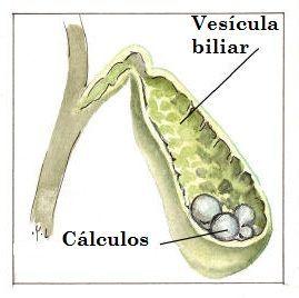 Calculos biliares